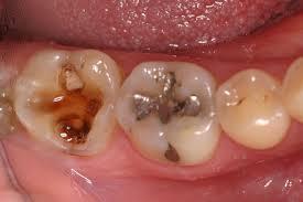 Gigi berlubang dan resikonya(2 4)  f6e078c0f2